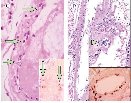 コロナウイルスの血管障害の図.jpg