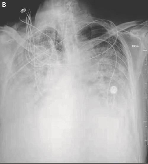 コロナウイルス肺炎の画像2.jpg