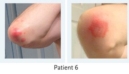 モデルナワクチンの皮膚病変2.jpg