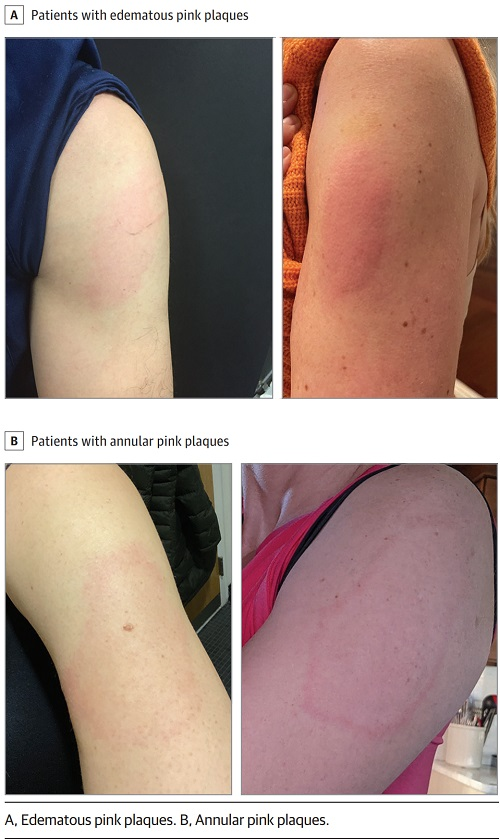 モデルナワクチンの皮膚病変の画像.jpg