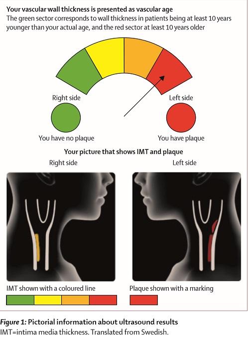 動脈硬化可視化の図.jpg