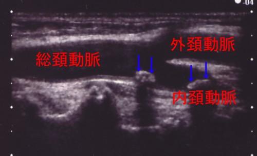 頚動脈の分岐.jpg
